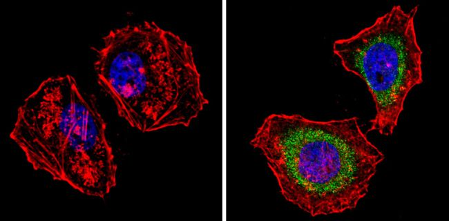 Survivin Antibody (MA5-11680) in Immunofluorescence