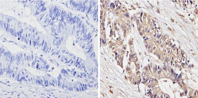 Survivin Antibody (MA5-11680) in Immunohistochemistry (Paraffin)