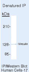 Vinculin Antibody (MA5-11690) in Immunoprecipitation