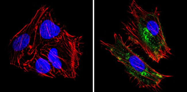 HLA-ABC Antibody (MA5-11723) in Immunofluorescence