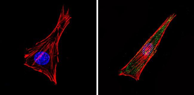 Bcl-2 Antibody (MA5-11757) in Immunofluorescence