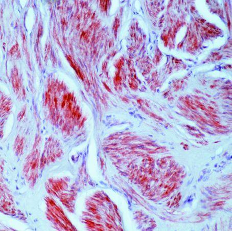 Caldesmon LMW Antibody (MA5-11777)