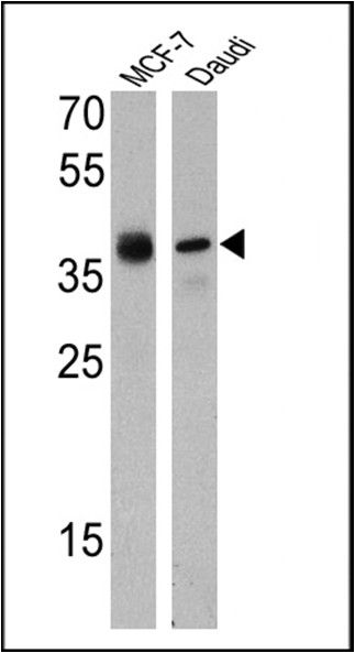CD24 Antibody (MA5-11828) in Western Blot