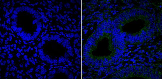 CD105 Antibody (MA5-11854)