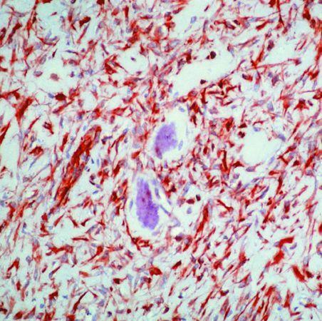 Vimentin Antibody (MA5-11883) in Immunohistochemistry