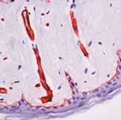 Laminin beta-2/gamma-1 Antibody (MA5-11992) in Immunohistochemistry