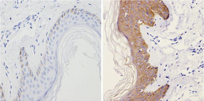 Cytokeratin 13 Antibody (MA5-12135) in Immunohistochemistry (Paraffin)