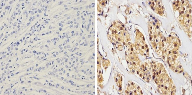 alpha Synuclein Antibody (MA5-12272) in Immunohistochemistry (Paraffin)