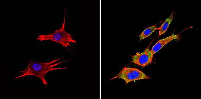 PTEN Antibody (MA5-12278) in Immunofluorescence