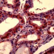 SLC5A5 Antibody (MA5-12308) in Immunohistochemistry