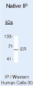 Estrogen Receptor alpha Antibody (MA5-12328) in Immunoprecipitation