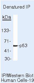 p53 Antibody (MA5-12453) in Immunoprecipitation