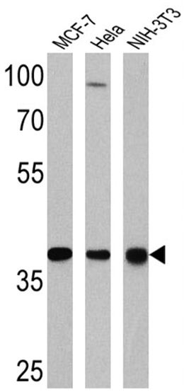 NPM1 Antibody (MA5-12508) in Western Blot