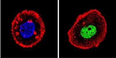 p53 Antibody (MA5-12554) in Immunofluorescence