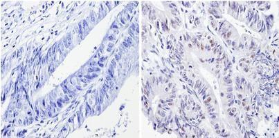 p53 Antibody (MA5-12554) in Immunohistochemistry (Paraffin)