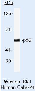 p53 Antibody (MA5-12554) in Western Blot