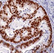 p53 Antibody (MA5-12571) in Immunohistochemistry