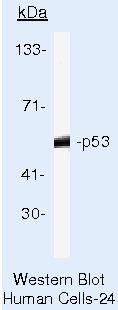 p53 Antibody (MA5-12571) in Western Blot