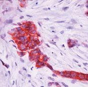 TFF1 Antibody (MA5-12669)