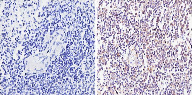 CD25 Antibody (MA5-12680) in Immunohistochemistry (Paraffin)