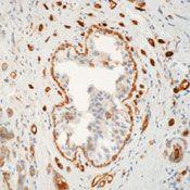 TGM2 Antibody (MA5-12739) in Immunohistochemistry