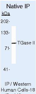 TGM2 Antibody (MA5-12739) in Immunoprecipitation