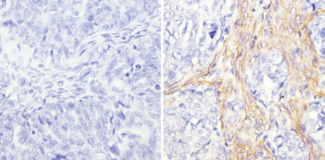AFP Antibody (MA5-12754) in Immunohistochemistry (Paraffin)