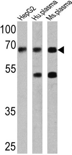 AFP Antibody (MA5-12754) in Western Blot