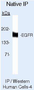 EGFR Antibody (MA5-12875) in Immunoprecipitation