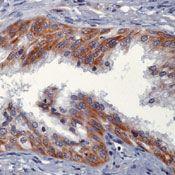 NRG1 Antibody (MA5-12896) in Immunohistochemistry