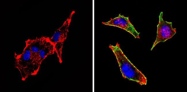 c-Kit Antibody (MA5-12944) in Immunofluorescence