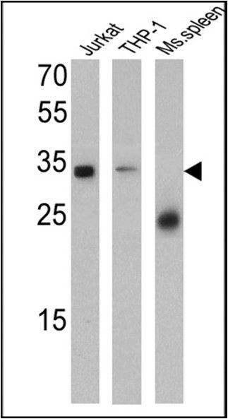 CD99 Antibody (MA5-12954) in Western Blot