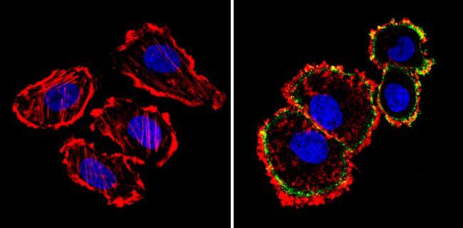 ErbB2 Antibody (MA5-12998) in Immunofluorescence