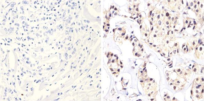 ErbB2 Antibody (MA5-12998) in Immunohistochemistry (Paraffin)