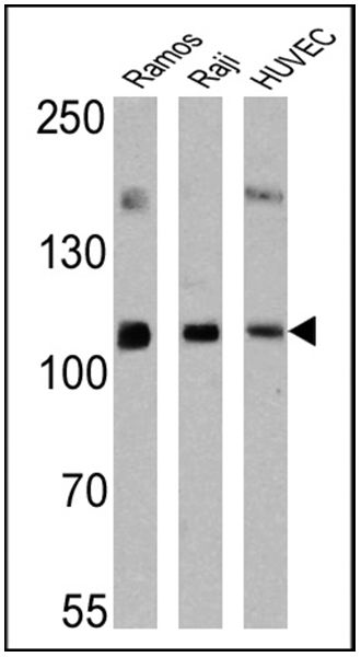 ICAM-1 Antibody (MA5-13021) in Western Blot