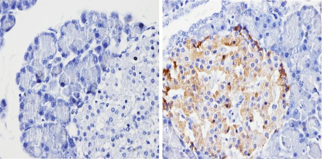 Chromogranin A Antibody (MA5-13096) in Immunohistochemistry (Paraffin)