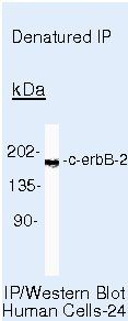 ErbB2 Antibody (MA5-13102) in Immunoprecipitation