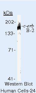 ErbB2 Antibody (MA5-13105) in Western Blot