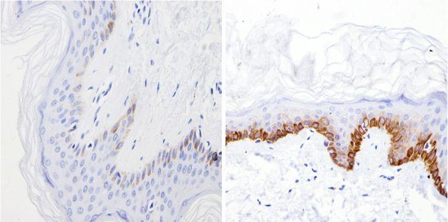 Cytokeratin Pan Type I Antibody (MA5-13144) in Immunohistochemistry (Paraffin)