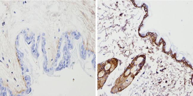 Cytokeratin Pan Type I/II Antibody (MA5-13156) in Immunohistochemistry (Paraffin)
