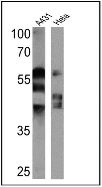 Cytokeratin Pan Type I/II Antibody (MA5-13156) in Western Blot