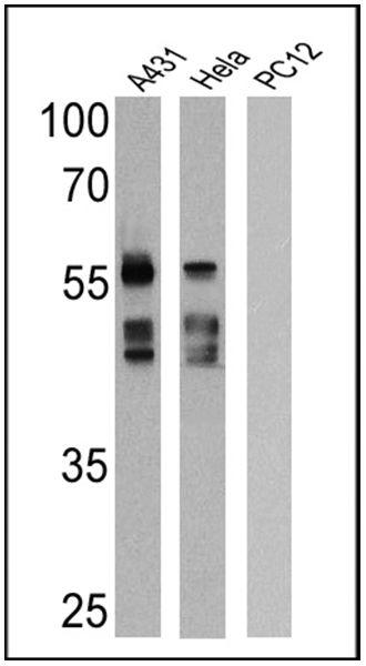 Cytokeratin Pan Antibody (MA5-13203) in Western Blot