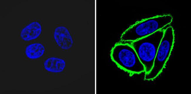 NGFR Antibody (MA5-13314)