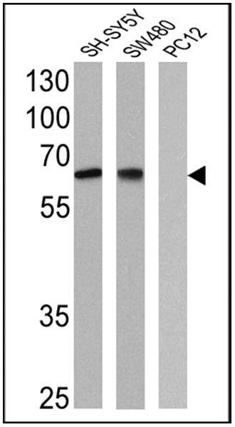NGFR Antibody (MA5-13314) in Western Blot
