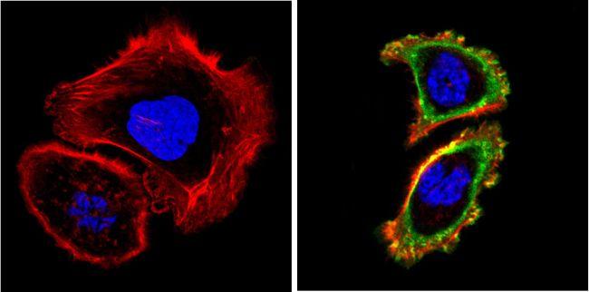 EGFR Antibody (MA5-13319) in Immunofluorescence