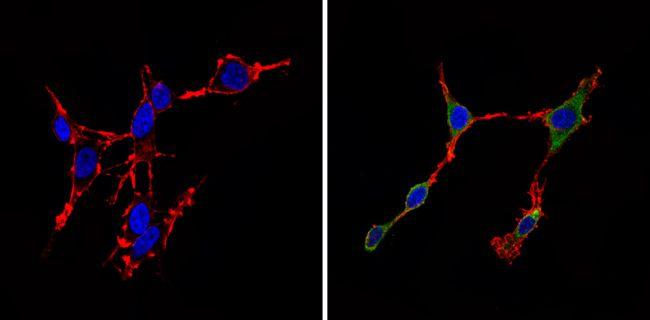 CDK6 Antibody (MA5-13330) in Immunofluorescence