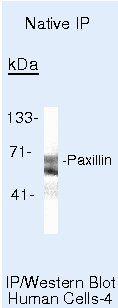 Paxillin Antibody (MA5-13356) in Immunoprecipitation