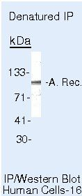 Androgen Receptor Antibody (MA5-13423) in Immunoprecipitation
