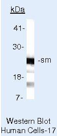 SNRPB Antibody (MA5-13446)