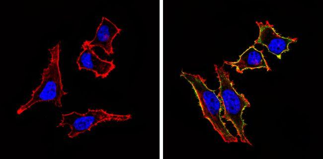 CD155 Antibody (MA5-13490) in Immunofluorescence